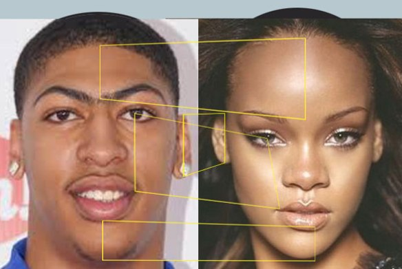 Vertical variation in two faces. What appears to be a low forehead is actually a high face and vice versa.