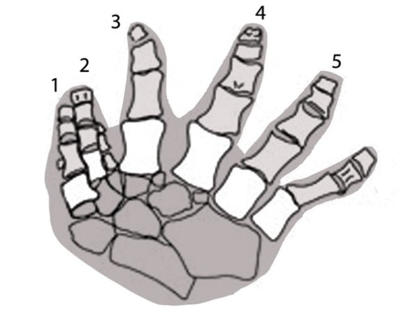Figue 1. The pes (foot) of Ichthyostega has 7 digits. Those five that most parsimoniously match related taxa are  listed. The vestigial digit between 2 and 3 may be the result of injury and rejuvenation.