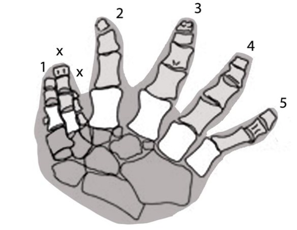 Figure 2. Ichthyostega pes with homologous digits numbered. The extra digits appear here between 1 and 2, perhaps due to a return to a more aquatic lifestyle (perhaps more swimming and less bottom walking).