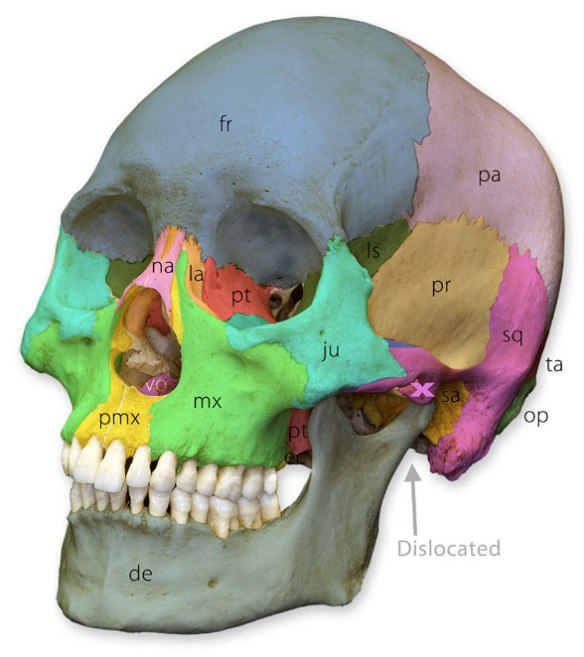 Figure 2. Labeled skull bones in Homo sapiens.