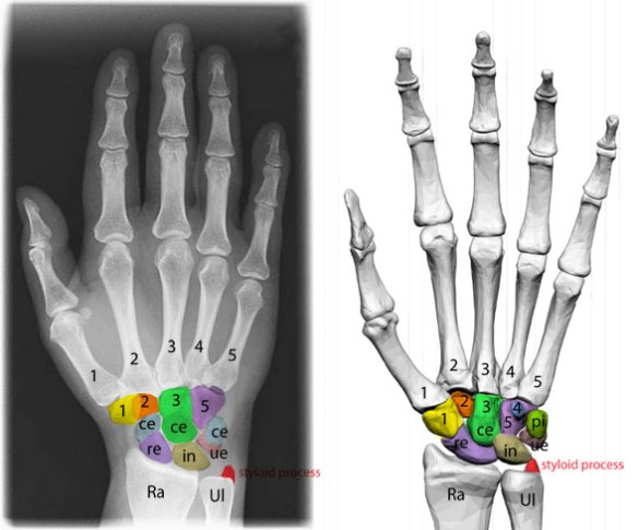 Figure 4. Manus of human (Homo) in dorsal (left) and ventral/palmar (right) views. Carpal elements colored.